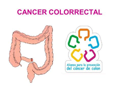 CANCER COLORRECTAL.