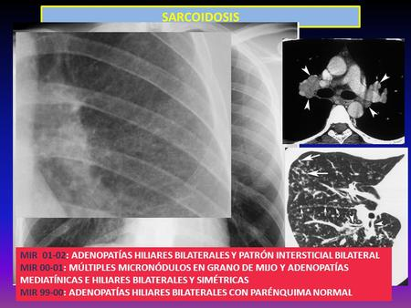 SARCOIDOSIS Figure 5. Pulmonary sarcoidosis in a 24-year-old
