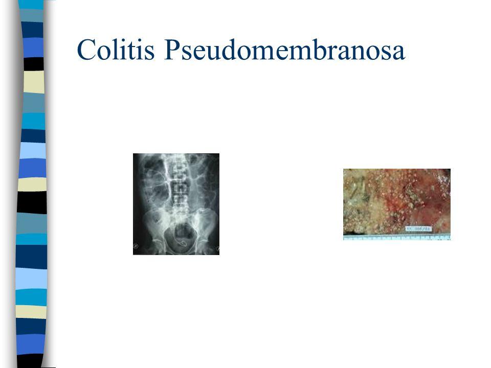 INFECCIONES POR ANAEROBIOS.C difficile. Respuesta inmune: Inespecífica mediada por PMN y C.