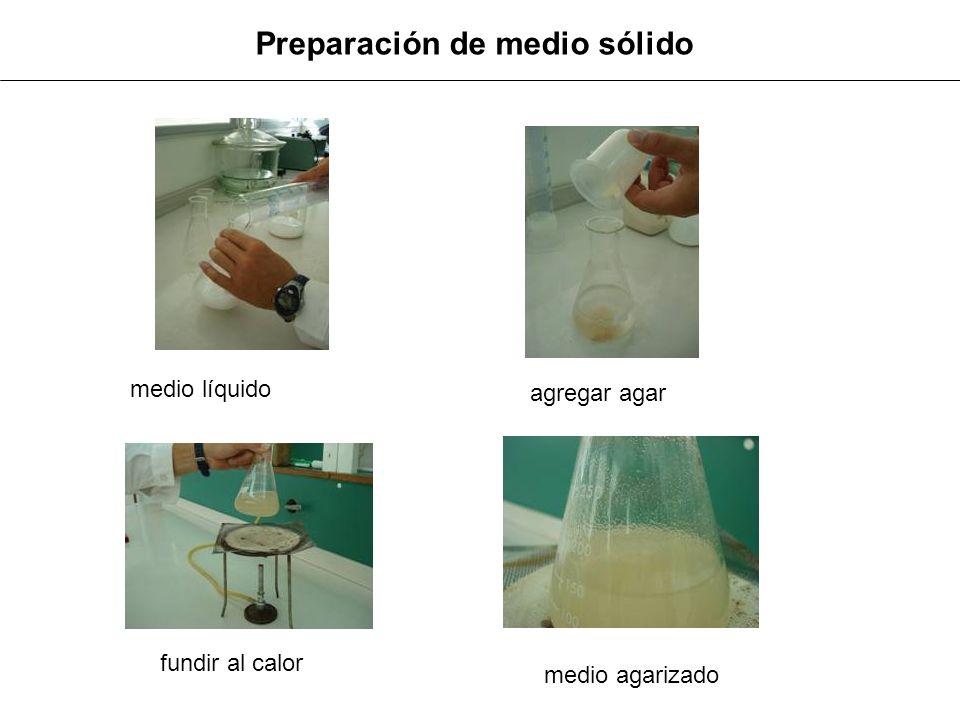 Fraccionar y acondicionar para esterilizar Fraccionamiento de medio líquido Fraccionamiento de medio sólido (en caliente ) Acondicionado para esterilizar
