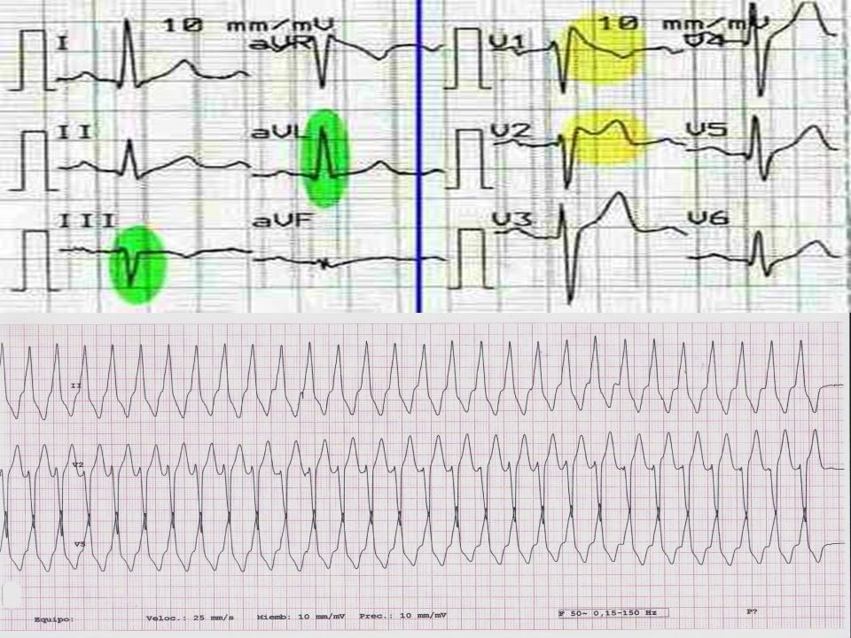 11 - DISFUNCION SINUSAL - ALTERACION DE LA CONDUCCION A-V - TAQUICARDIAS PAROXISTICAS: TSV - TV - CANALOPATIAS - sindrome de Brugada - sindrome del QT largo - sindrome de QT corto - MALFUNCION DE MPD O DAI - PROARRITMIAS Arritmias Cardíacas