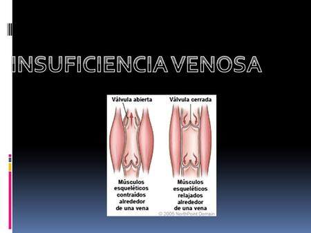 INSUFICIENCIA VENOSA.