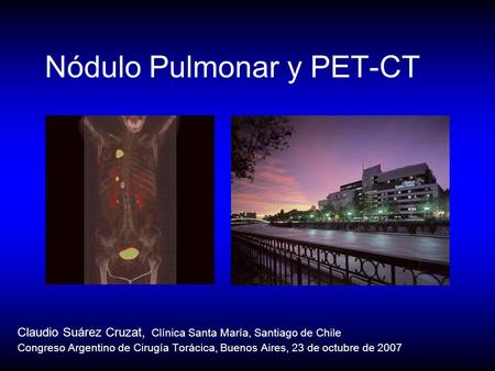 Nódulo Pulmonar y PET-CT