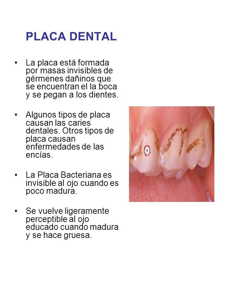 La Caries ¿A Qué Nos Anticipamos?