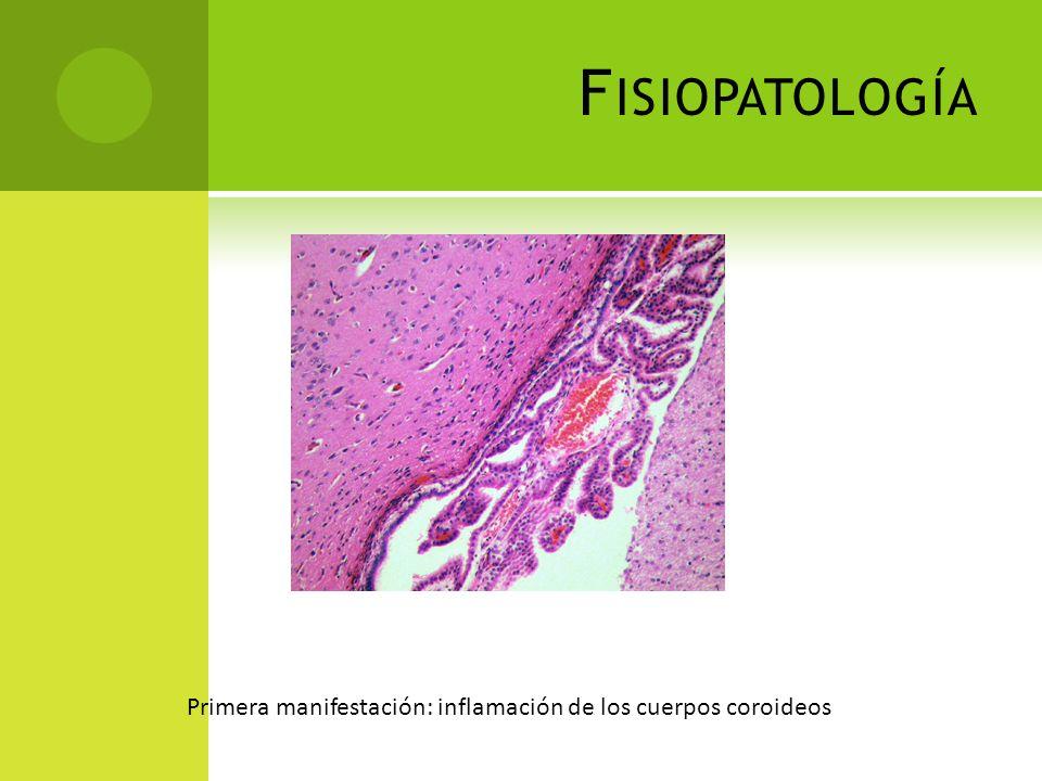 F ISIOPATOLOGÍA Leptomeningitis: Exotoxinas bacterias Gram (-) o peptidoglicanos de las Gram (+) IL-1 y TNF – macrófagos del SNC Endotelio cerebral secreta PGE2 Quimiotaxis leucocitaria LCR turbio = vellosidades subaracnoideas obst.