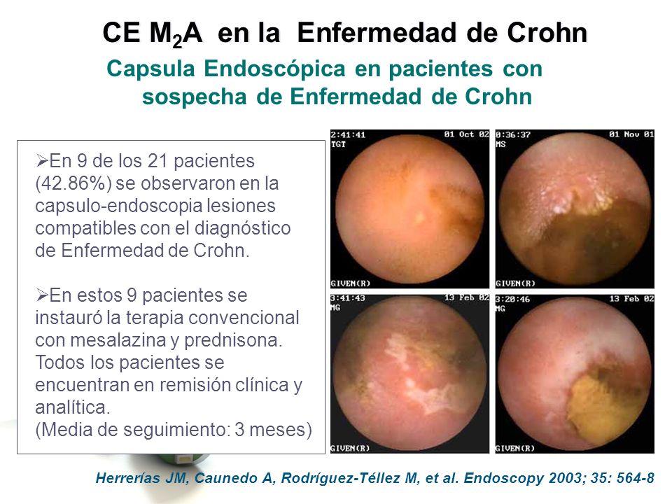 La Cápsula endoscópica puede demostrar la existencia de úlceras y otras lesiones compatibles con el diagnóstico de enfermedad de Crohn y no detectadas mediante las técnicas convencionales.