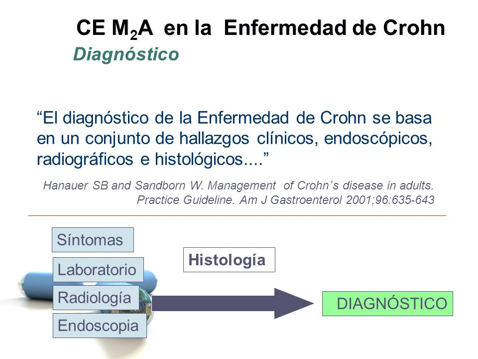 Afectación del Ileon Terminal (20-30%) Yeyuno y/o Ileon proximal (10%) Ileoscopia con biopsia Retraso Diagnóstico Kornbluth A, et al.