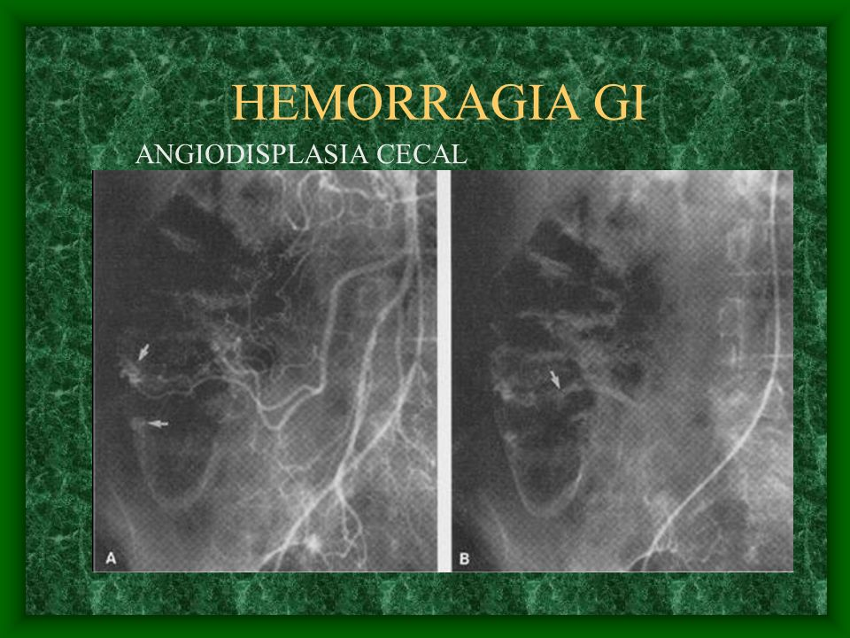 HEMORRAGIA GI