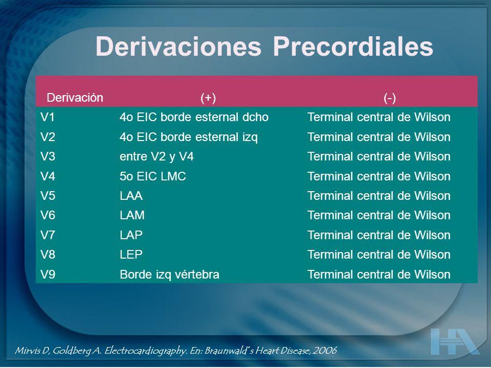 Derivaciones precordiales Jones S. ECG Notes. 2005, F. A. Davis