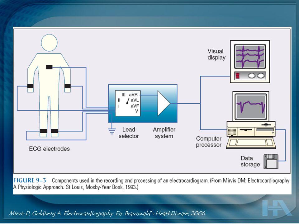 Estandarización Velocidad del Electrocardiógrafo : 25 mm / Segundo.