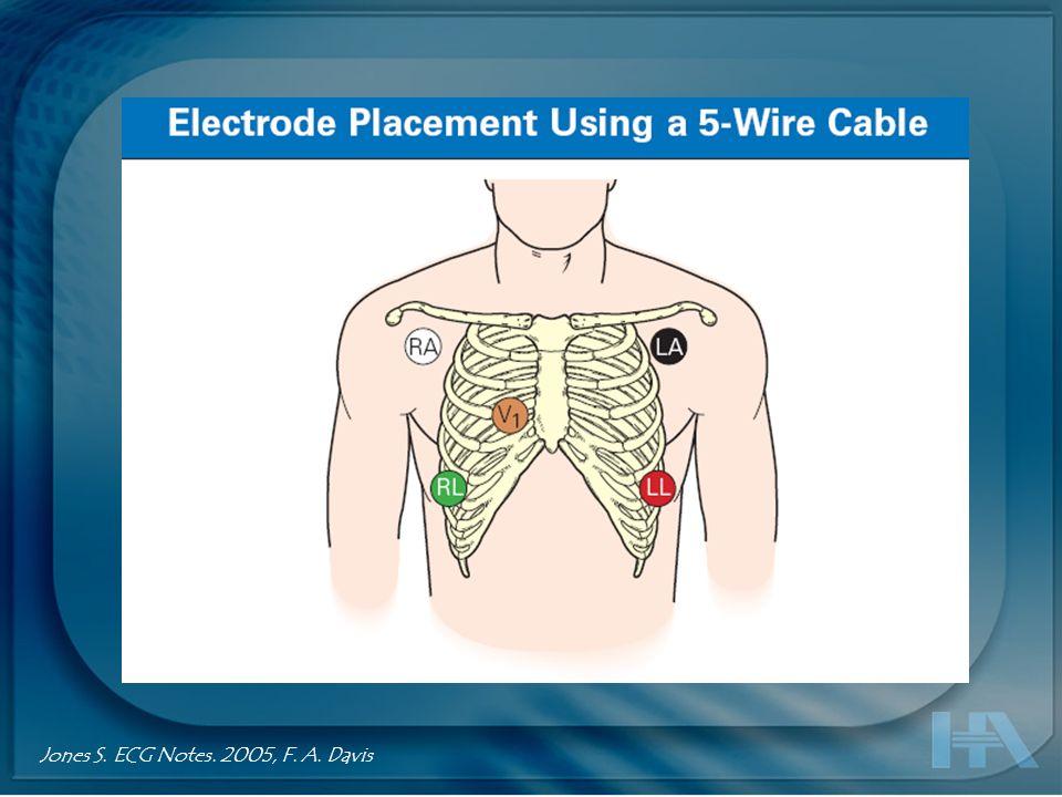 ECG 12 deriv. estándar Tragardh. How many ECG leads do we need? Cardiol Clin 24 (2006) 317–330