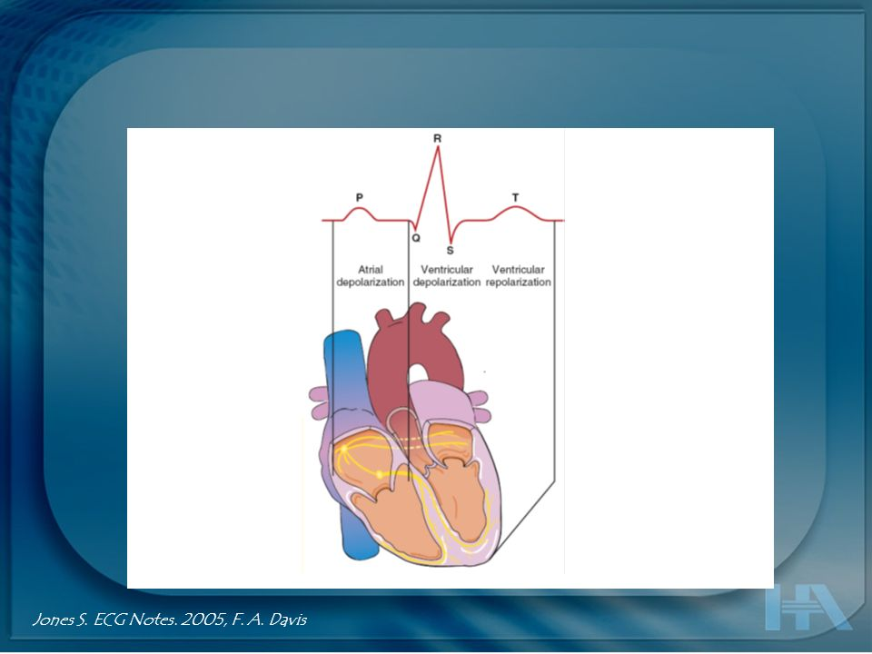 Thaler M. The Only EKG book youll ever need. LWW 2007