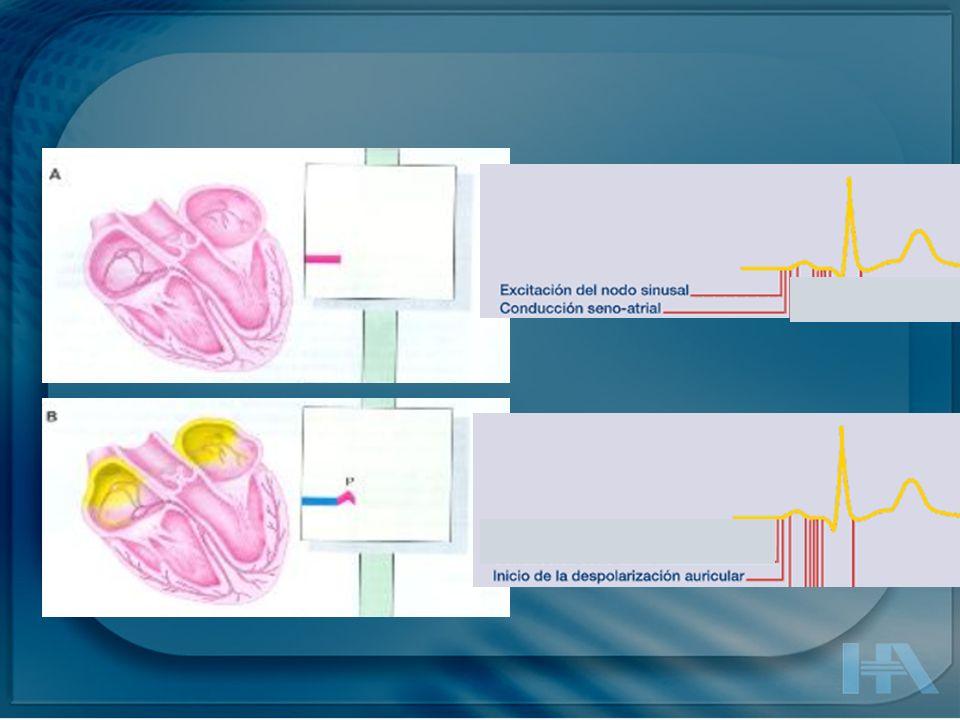 Onda P : Despolarización auricular - Ocurre de arriba a abajo y de derecha a izquierda.