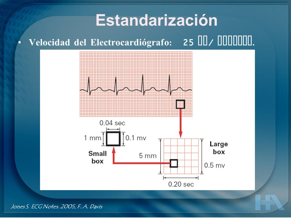 A = Sensibilidad o estandarización completa o normal.