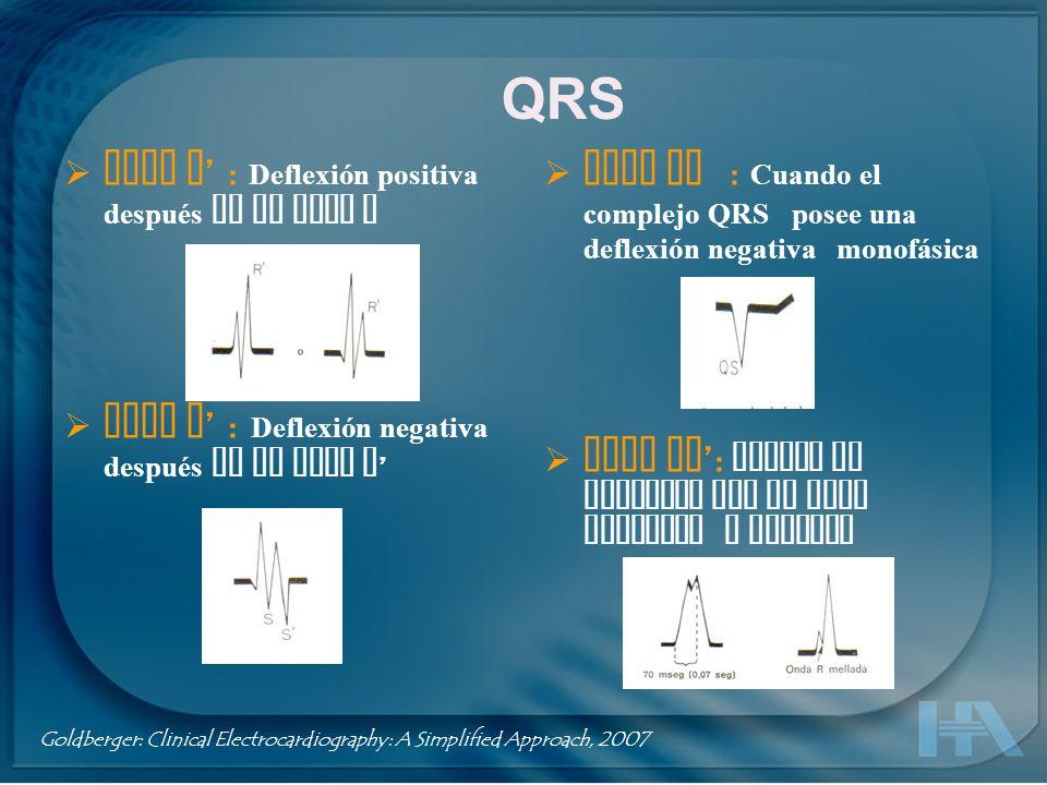 Intervalo RR : Distancia entre dos ondas R sucesivas Intervalo PP : Distancia entre dos ondas P sucesivas Intervalo QRS : Tiempo de despolarización ventricular desde el inicio de la Q ( o R ) hasta el fin de a S Goldberger: Clinical Electrocardiography: A Simplified Approach, 2007