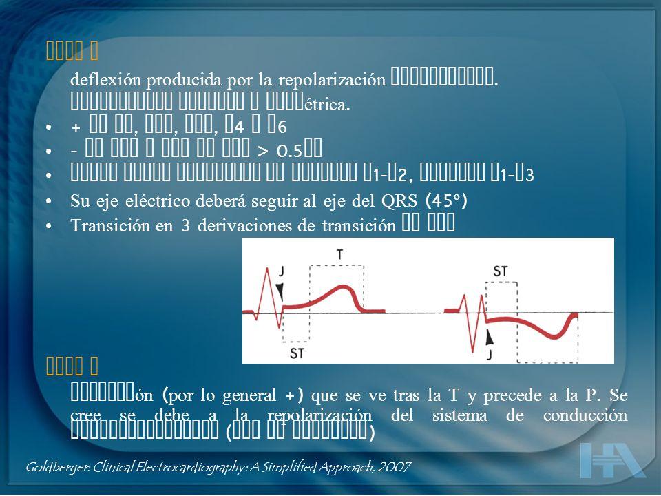 Deflexión intrinsecoide Tiempo que toma un impulso atravesar el miocardio desde el endocardio hasta la superficie epicárdica.