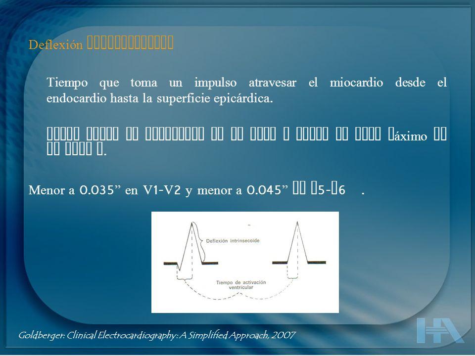 Intervalo QT Representa la duración de la sístole eléctrica ventricular Desde el inicio de la Q hasta el final de la T Varía inversamente con la FC y los impulsos del SNA.