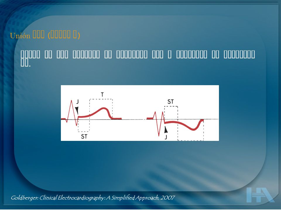 Segmento ST Porción entre el punto J hasta el inicio de la onda T Suele ser isoeléctrico, puede variar de -0.5 a + 2 mm.