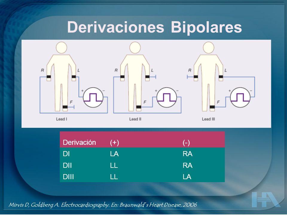 Derivaciones Bipolares Jones S. ECG Notes. 2005, F. A. Davis