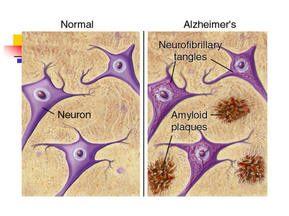 Enf.Alzheimer Diagnòstico DSM VI.- Inicio precoz, inicia sx.