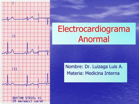 Electrocardiograma Anormal