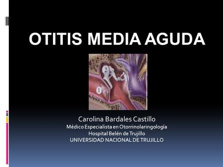 OTITIS MEDIA AGUDA Carolina Bardales Castillo