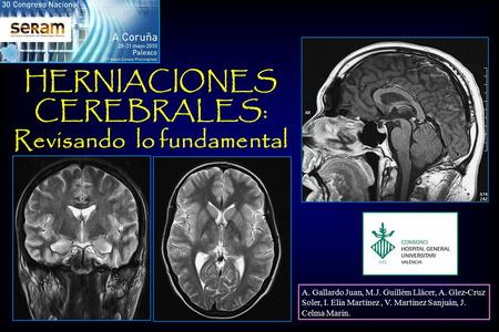HERNIACIONES CEREBRALES: Revisando lo fundamental