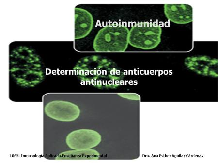 Determinación de anticuerpos antinucleares
