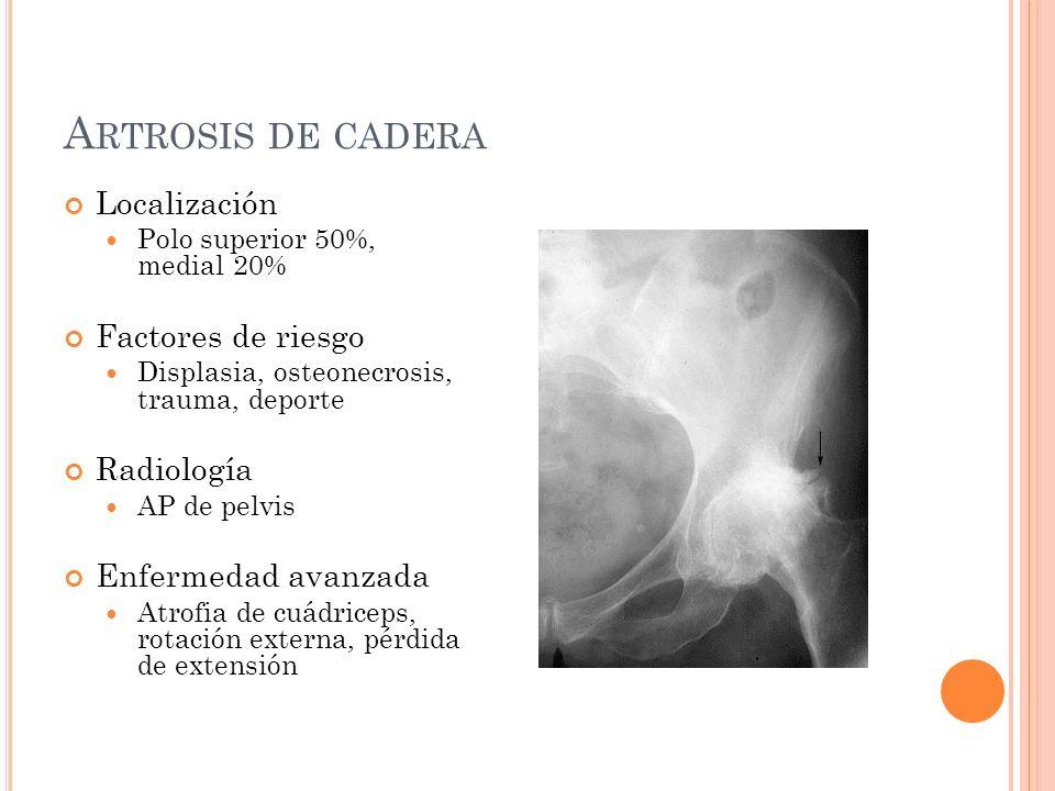 A RTROSIS DE RODILLA Localización Tibiofemoral medial Femororrotuliana Factores de riesgo Obesidad, malalineación, trauma Radiología AP-lateral, de pie Enfermedad avanzada Malalineación, contractura en flexión, atrofia del cuádriceps