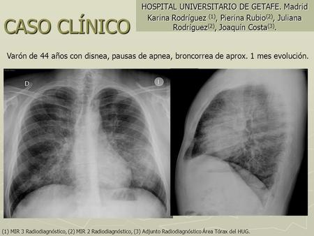 HOSPITAL UNIVERSITARIO DE GETAFE. Madrid