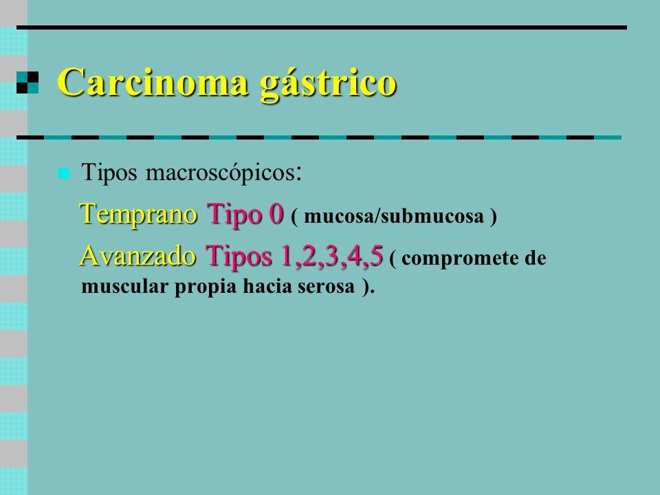 Carcinoma Temprano Tipo 0 I: Protruído Tipo 0 I: Protruído Tipo 0 IIa: Superficial elevado Tipo 0 IIa: Superficial elevado Tipo 0 IIb: Plano Tipo 0 IIb: Plano Tipo 0 IIc: Superficial deprimido Tipo 0 IIc: Superficial deprimido Tipo 0 III: Excavado Tipo 0 III: Excavado