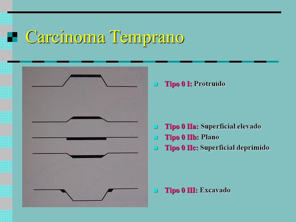 Carcinoma avanzado Tipo 1Polipoide Tipo 1: Polipoide Tipo 2Ulcerado expansivo Tipo 2: Ulcerado expansivo ( márgenes elevados y bien demarcados ) Tipo 3Ulcerado infiltrante Tipo 3: Ulcerado infiltrante Tipo 4Infiltrativo difuso Tipo 4: Infiltrativo difuso ( linitis plástica ) Tipo 5No clasificable Tipo 5: No clasificable