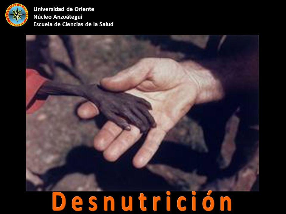 Deficiencia de nutrientes que generalmente se asocia a dieta pobre en vitaminas, minerales, proteínas, carbohidratos y grasas, alteraciones en el proceso de absorción intestinal, diarrea crónica y enfermedades como cáncer o sida.