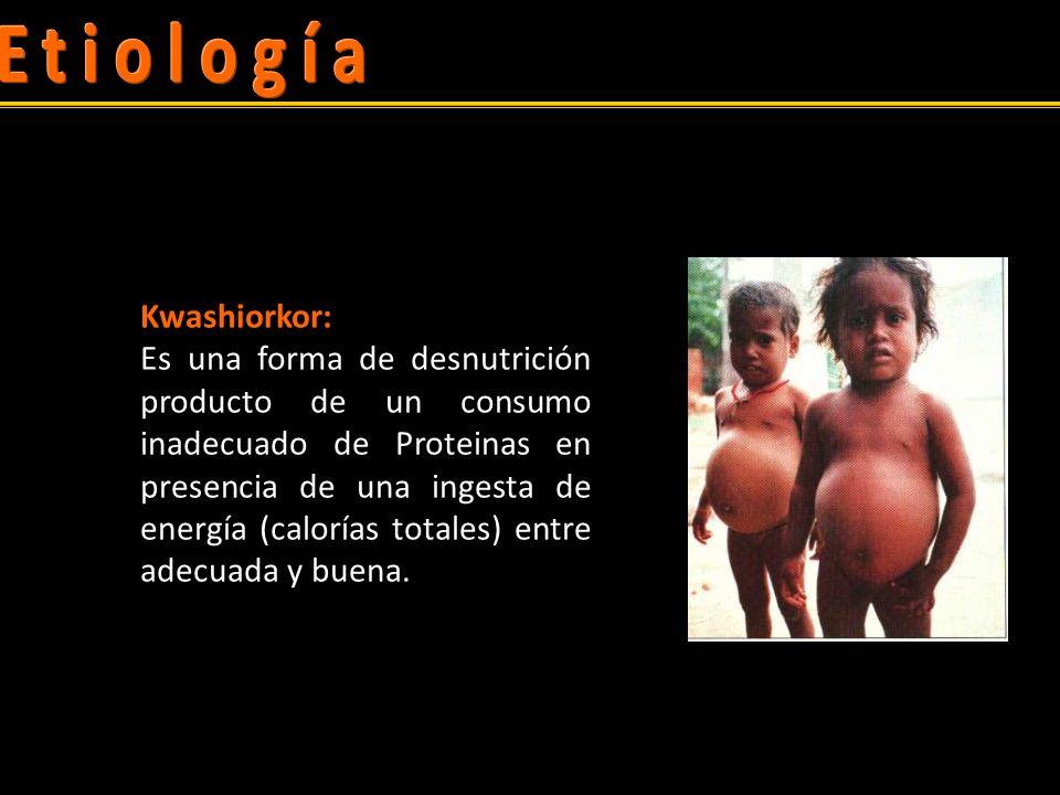 Comparación de las manifestaciones clínicas del Kwashiorkor y el Marasmo