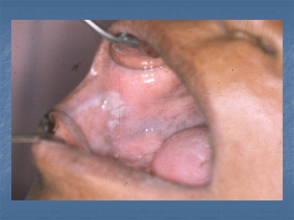 Sarampión 12 a 24 horas después la aparición de las manchas de koplik comienza a formarse el exantema del sarampión inmediatamente debajo de las orejas, el cual se extiende por todo el cuerpo.