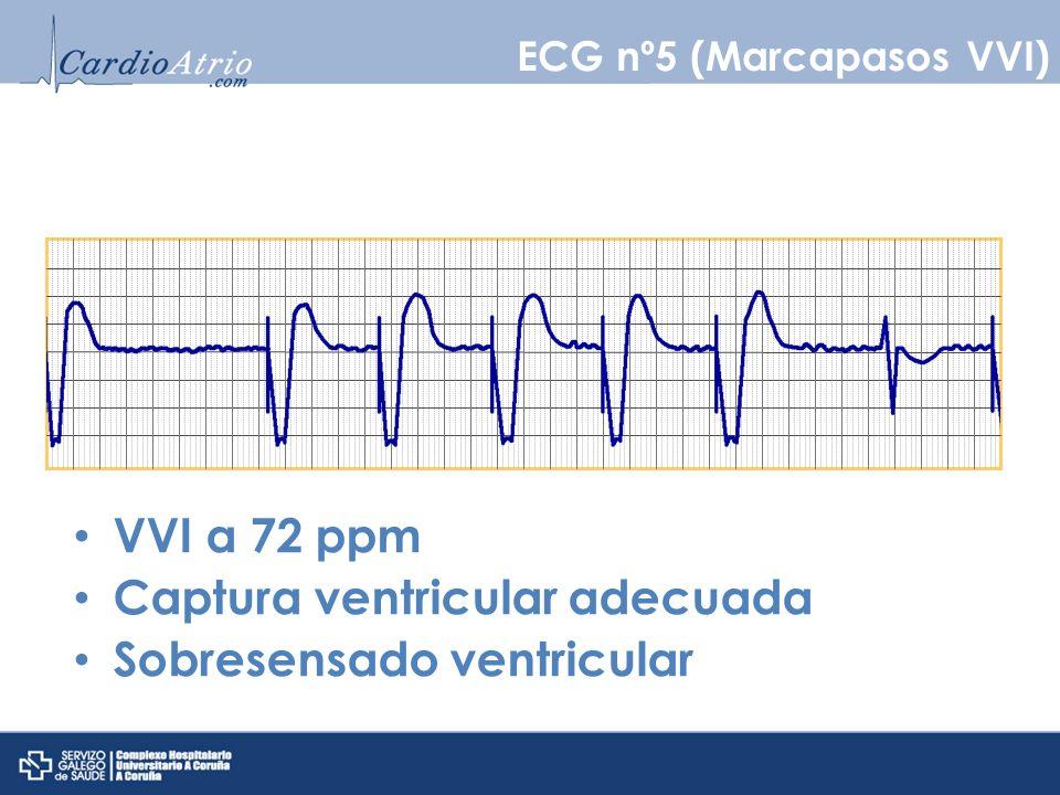 Base Rate 60 ppm MTR120 ppm AV150 ms PV150 ms PVARP350 ms Iniciación de bloqueo 2:1 Función normal por superar el límite superior de seguimiento ECG nº6