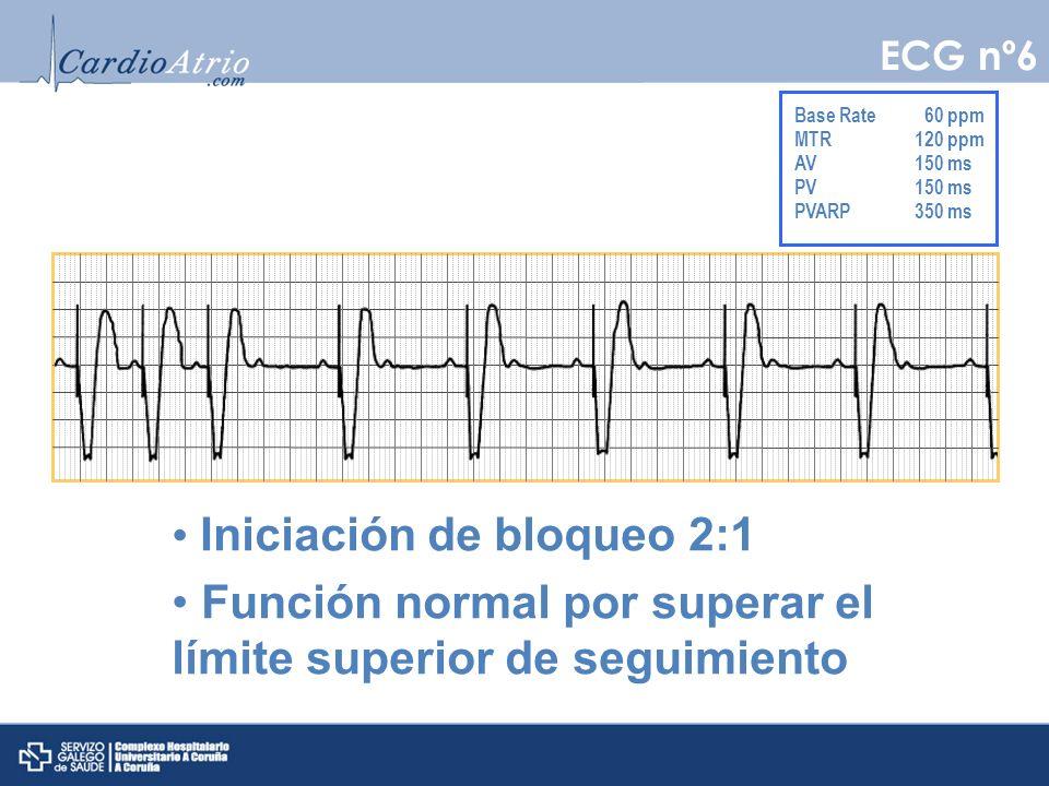 Captura auricular normal Sensado auricular normal Captura ventricular normal Sensado ventricular normal EV con conducción retrógrada que inicia una taquicardia mediada por MP ECG nº7