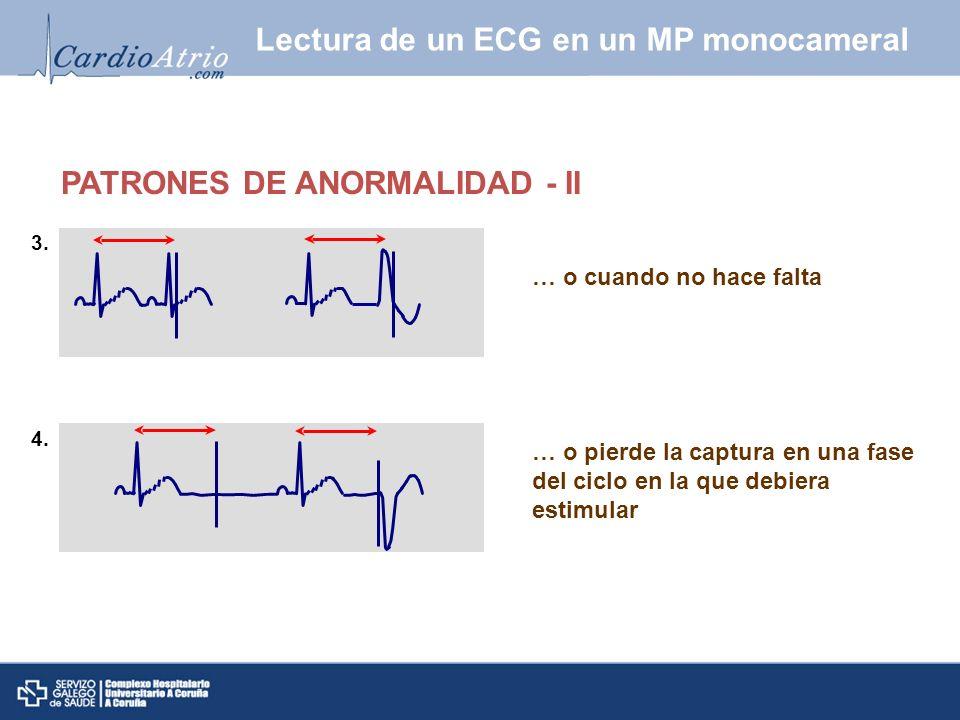 Sincronización de los estímulos ventriculares a los acontecimientos auriculares PATRONES DE NORMALIDAD Intervalos PR mas cortos que AV Intervalos PP mas cortos que AA Si hay una extrasístole, el MP se inhibe Lectura de un ECG en un MP bicameral