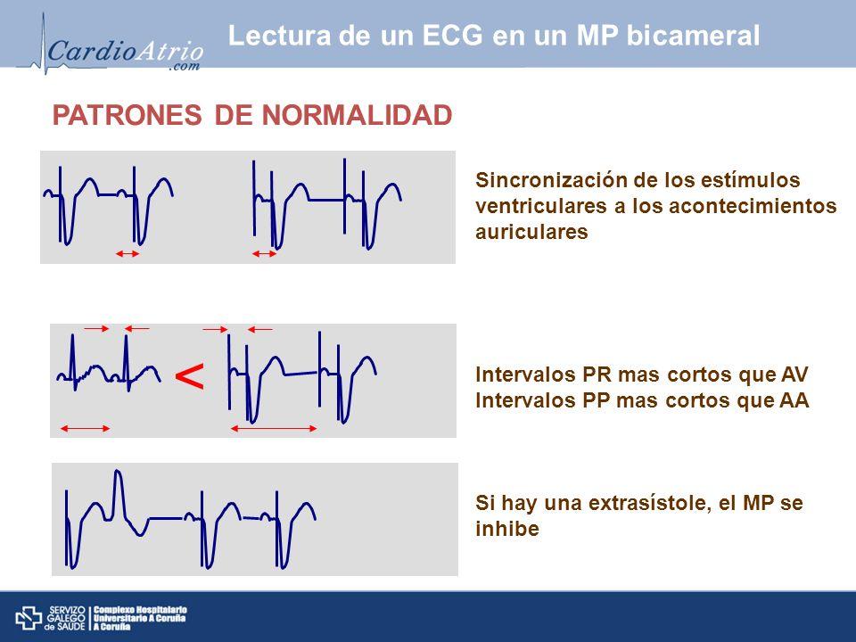 Sistemática de análisis Medir ciclo base Medir intervalos AV/PV Verificar la captura atrial Verificar el sensado atrial Verificar la captura ventricular Verificar el sensado ventricular Verificar presencia de ritmo propio