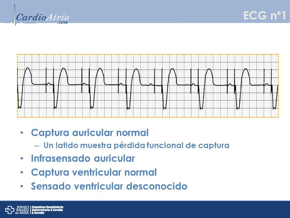 Captura auricular normal Sensado auricular normal Captura ventricular normal con 2 latidos con pérdida de captura funcional Infrasensado ventricular ECG nº2