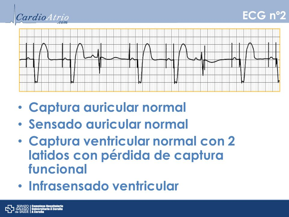 ECG nº3 (Marcapasos VVI) VVI a 60 lpm Captura y sensados adecuados Histéresis a 50 lpm
