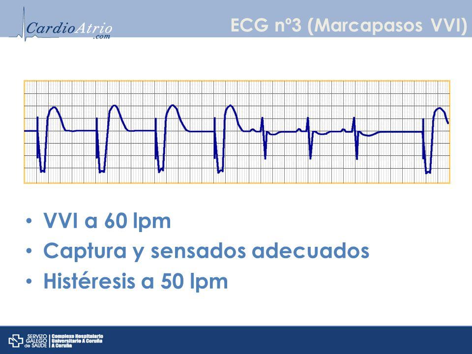 VVI a 72 ppm Infrasensado ventricular Fallo de captura ventricular ECG nº4 (Marcapasos VVI)
