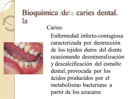 Bioquímica de la caries dental. Caries: