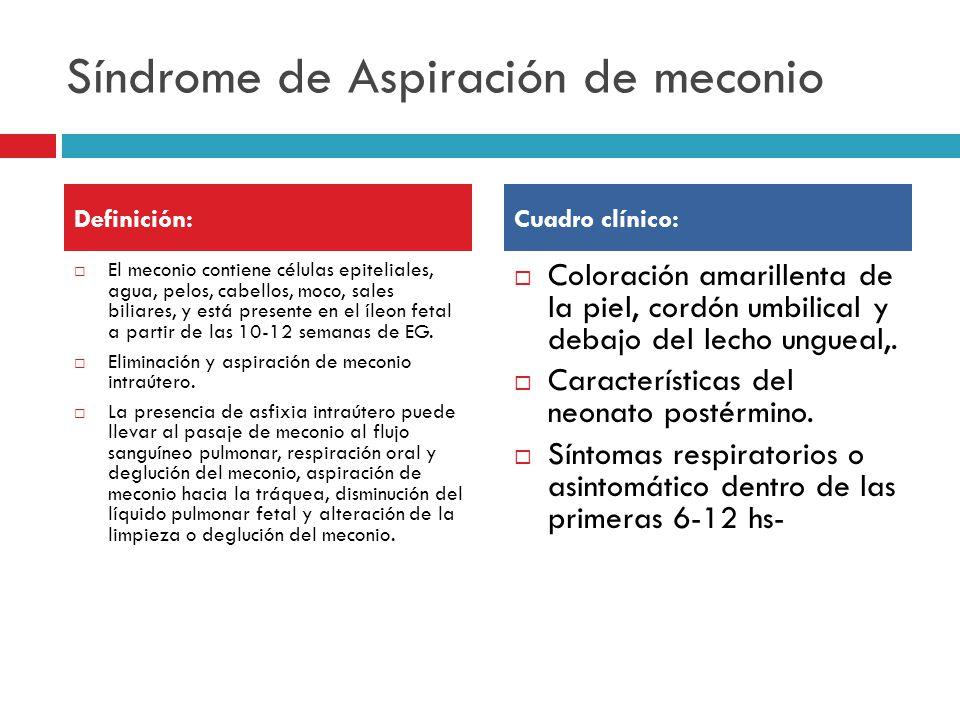Intervenciones de Enfermería: Ventilación mecánica.