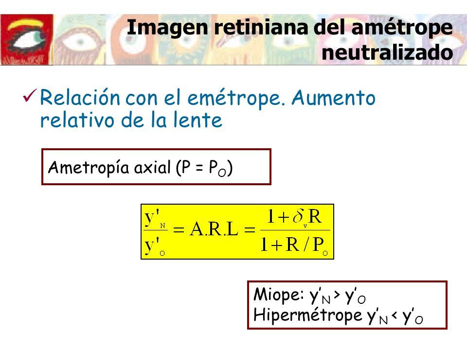 Imagen retiniana del amétrope neutralizado Ametropía refractiva (R + P = P O ) Miope: y N < y O Hipermétrope y N > y O Relación con el emétrope.