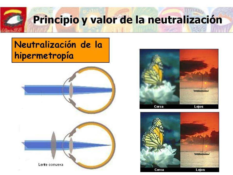 Principio y valor de la neutralización Relación entre la Refracción (R) i la Potencia de la Lente Neutralizadora (P vp ) v distancia de vértice (12mm-14mm)