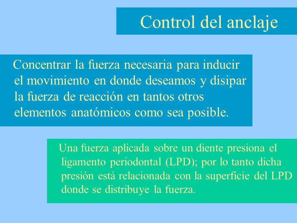1- Movimiento dental recíproco.2- Anclaje reforzado.
