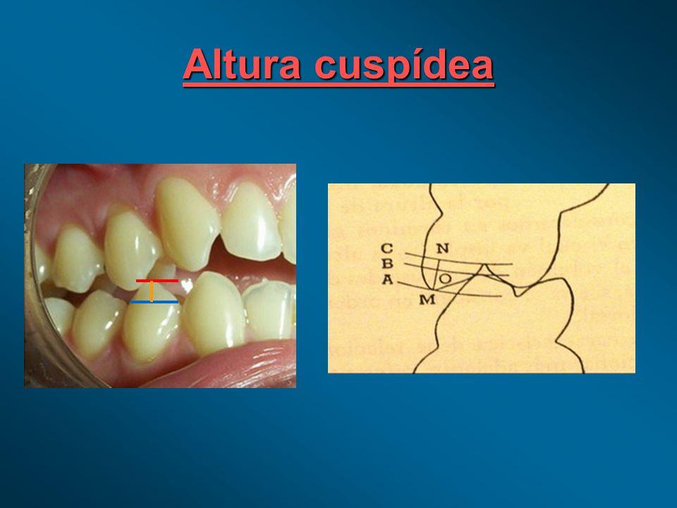 CUSPIDES DE SOPORTE D.V.O.D.V.O.MasticaciónMasticación EstabilidadEstabilidad dent.