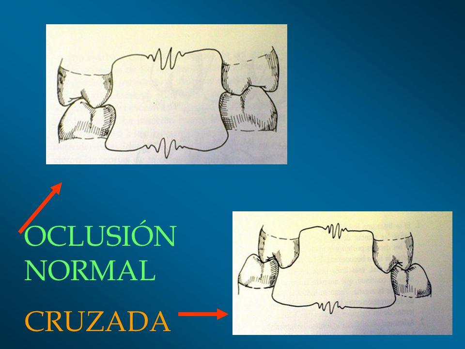 RELACIÓN DE ANTAGONISMO: Cúspide Cúspide fosa (1 a 1).