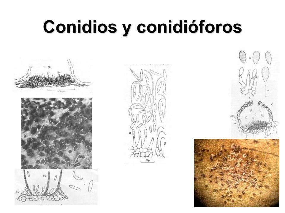 Basidiomycota UrediniomycetesUstilaginomycetesHymenomycetes